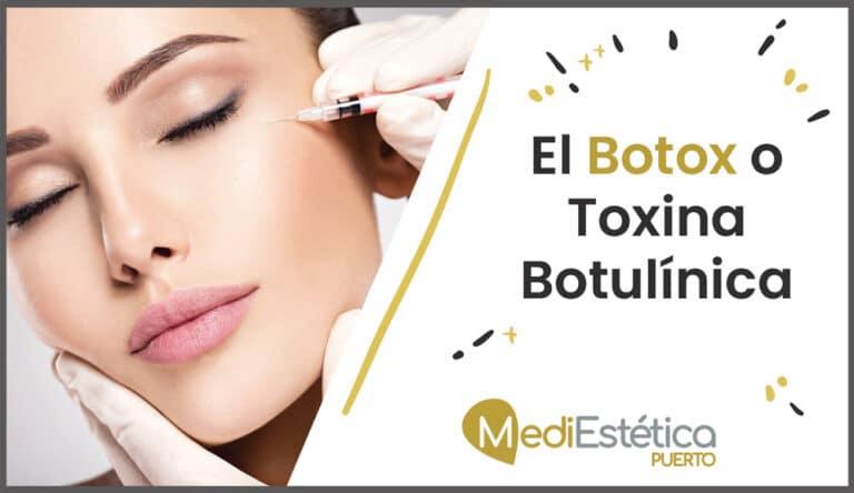 Qué es el Botox