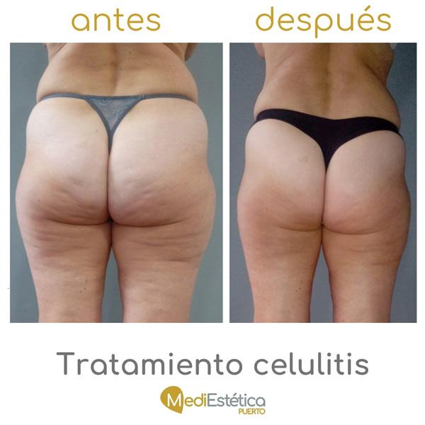 tratamiento celulitis antes y después