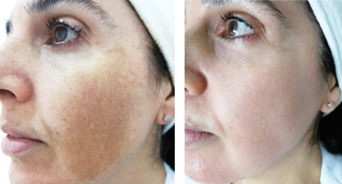eliminación de manchas en la piel melasma