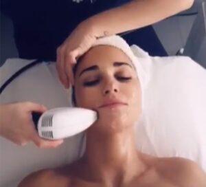 paula echevarría radiofrecuencia facial