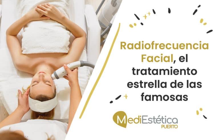 Radiofrecuencia Facial, el tratamiento estrella de las famosas