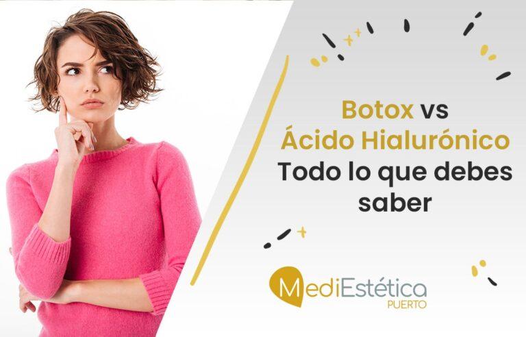 Botox y Ácido Hialurónico, diferencias y cuál elegir