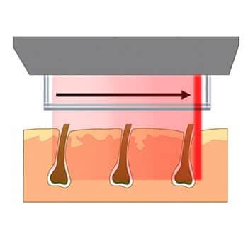 depilación láser por escáner
