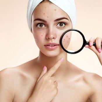 Tratamiento intensivo acné